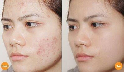 Kem hỗ trợ trị mụn Giori nhanh chóng làm mờ vết thâm sẹo do mụn cho làn da đẹp mịn màng