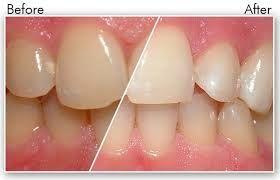 Lợi ích khi sử dụng bàn chải đánh răng điện Maxcare