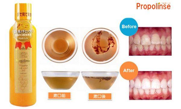 Mỗi ngày chỉ nên sử dụng nước súc miệng Propolinse từ 2-3 lần