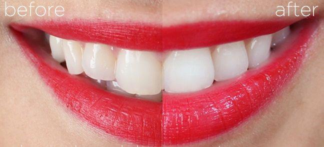 Kem đánh răng Crest 3D White loại bỏ vết ố vàng, cho hàm răng trắng sáng