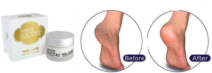 White Doctor Heel Care hiệu quả trong thời gian ngắn sử dụng