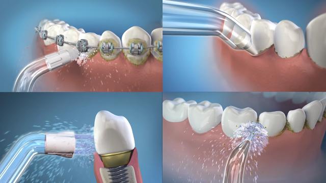 Giúp loại bỏ vi khuẩn ở kẽ răng, dưới nướu, giúp nướu khỏe mạnh hơn chỉ trong 14 ngày