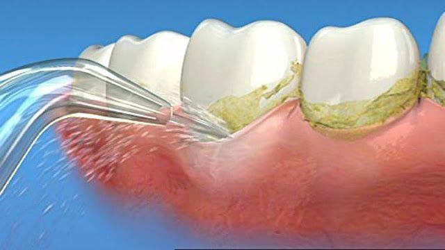 Đầu vòi nước có góc nghiêng 3600 để có thể chạm đến tất cả các nơi trong miệng