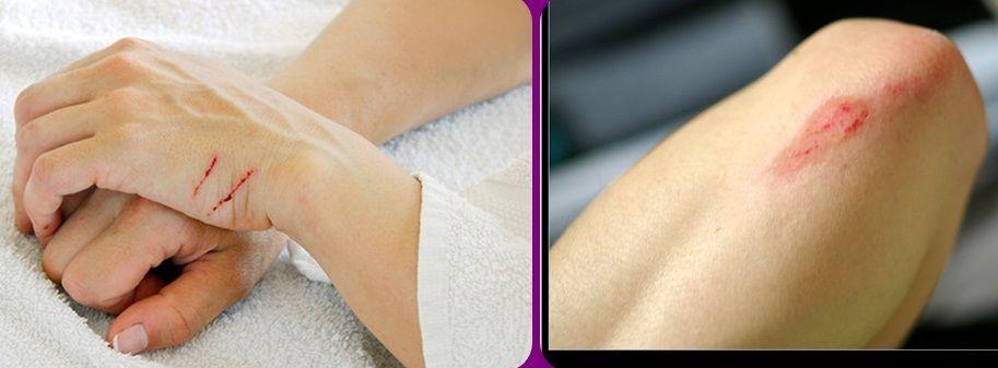 Kem mỡ Neosporin Original Ointment chỉ dùng ngoài da. Công thức đặc biệt có thể dùng cho cả da nhạy cảm