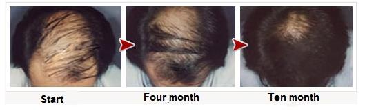 Hiệu quả sau khi sử dụng Thuốc mọc tóc Minoxidil 5% Men's Rogaine dạng bọt