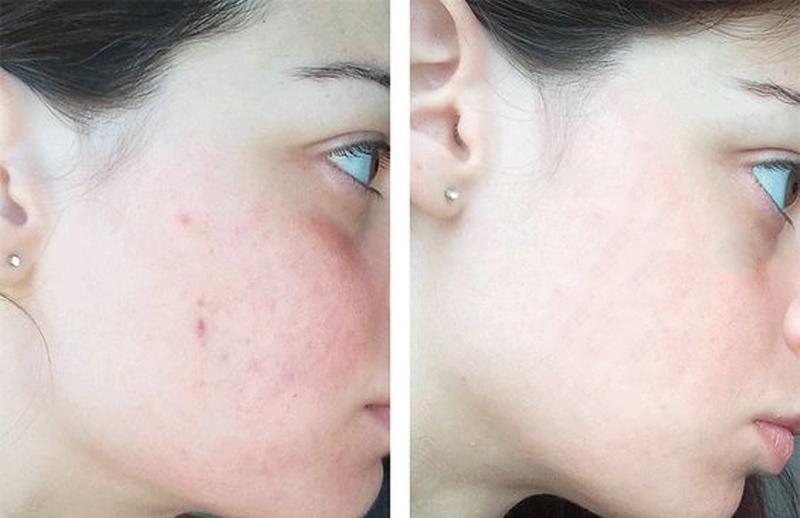 Lotion Meishoku Bigansui Medicated chuyên dùng cho những người sở hữu làn da dầu dễ bị mụn