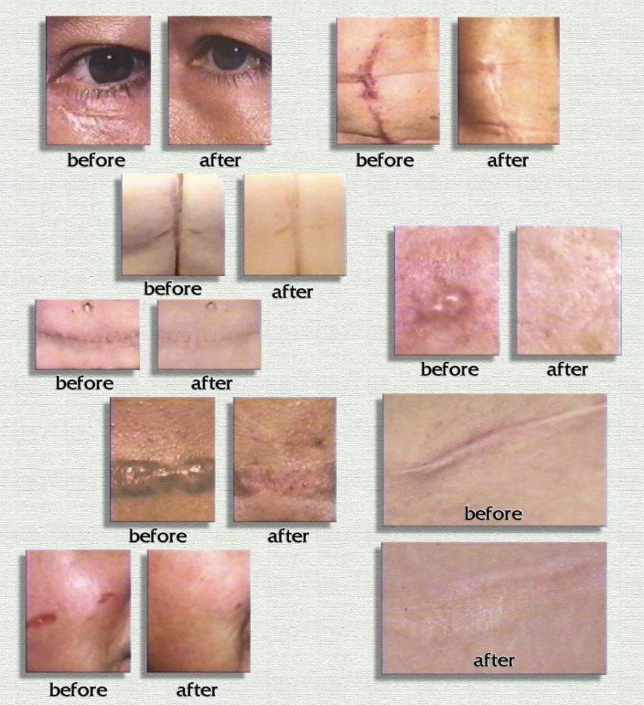 Scar Rejuvasil chuyên trị sẹo lồi, sẹo phẫu thuật, sẹo mổ đẻ, vết rạn da; đặc biệt hiệu quả với sẹo trên 1 năm