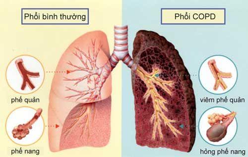Bảo Khí Khang giúp hỗ trợ điều trị các bệnh về đường hô hấp