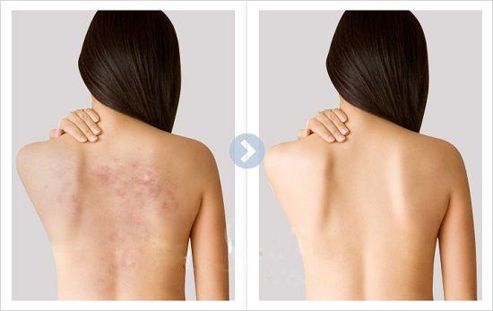 Xà phòng Medimix thảo mộc có thành phần dầu dừa giúp hỗ trợ trị mụn và dưỡng ẩm da