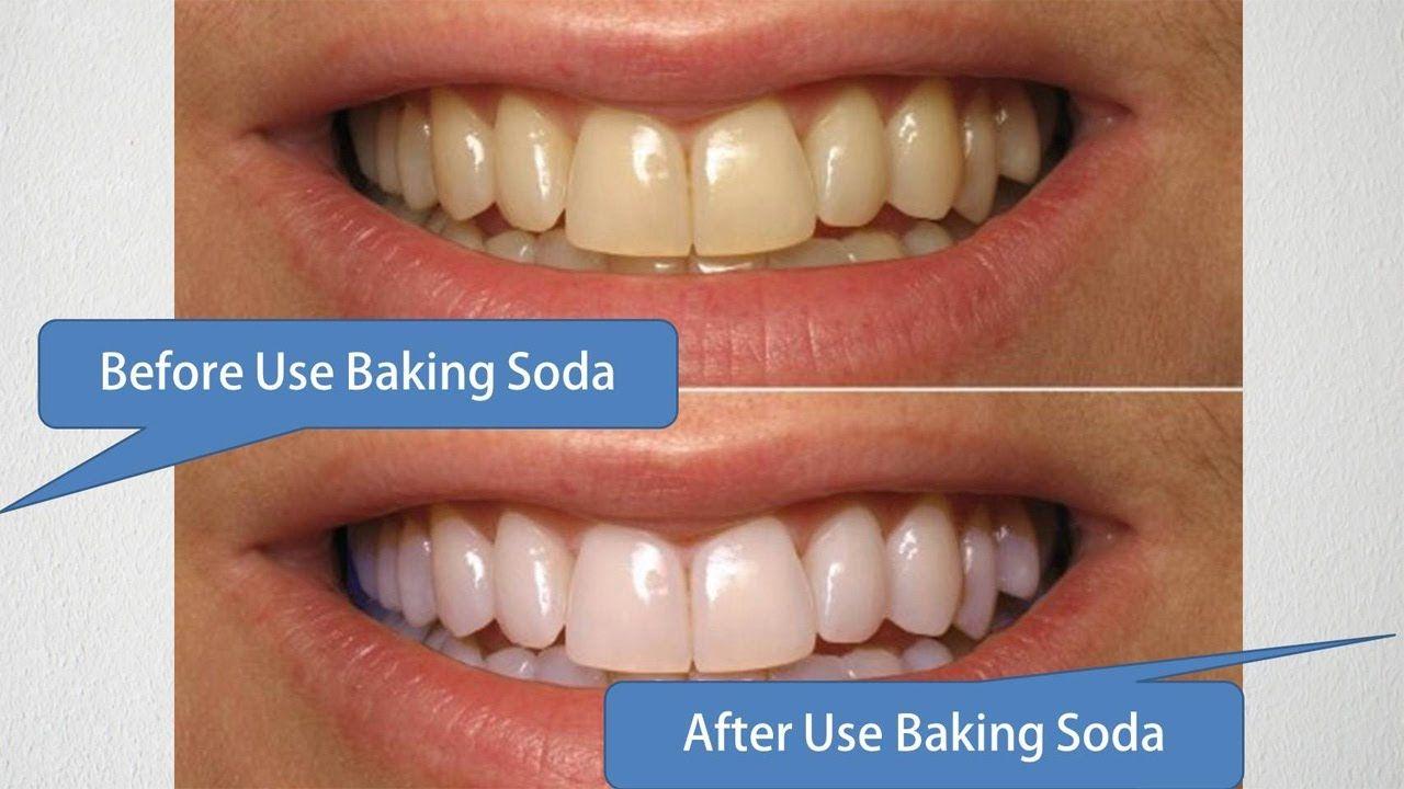 Làm trắng răng, nước súc miệng