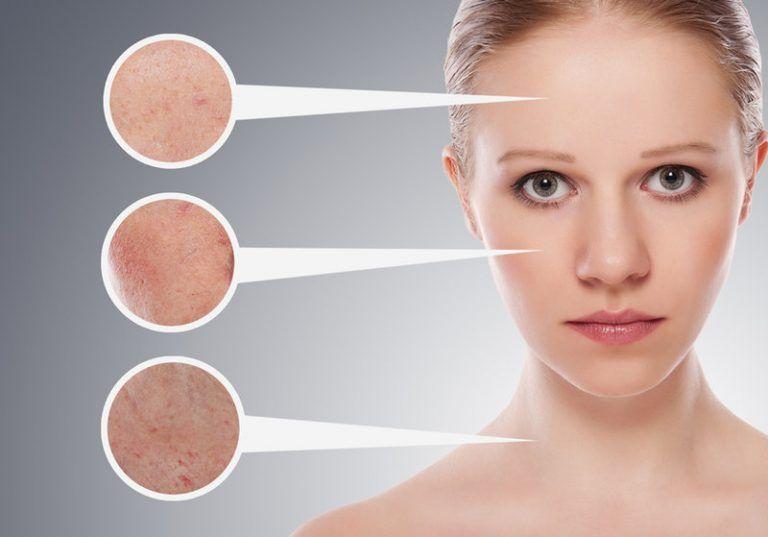 Hỗ trợ tích cực cho quá trình điều trị sạm da, tàn nhang cực kỳ hiệu quả.