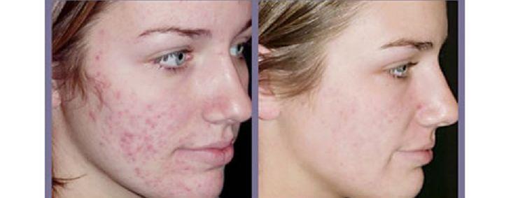 Kem trị mụn, loại bỏ dầu SVR Sebiaclear Active là sản phẩm chăm sóc da chuyên sâu, giúp xử lý các vấn đề về mụn