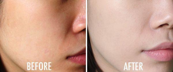 Serum Vitamin C Ava Youth Activation dưỡng trắng da, cho da mịn màng