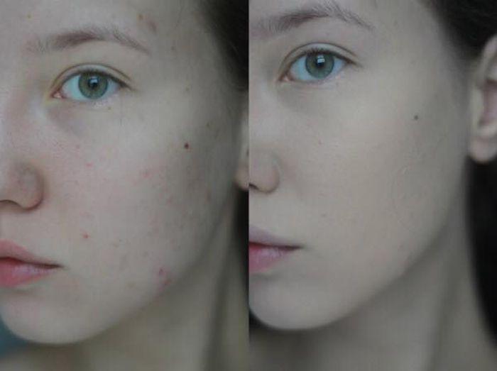 Sản rửa mặt trị mụn giúp lấy đi tế bào chết, vi khuẩn, bã nhờn và bụi bẩn, mang lại cho bạn làn da sạch sẽ, khỏe mạnh, mịn màng