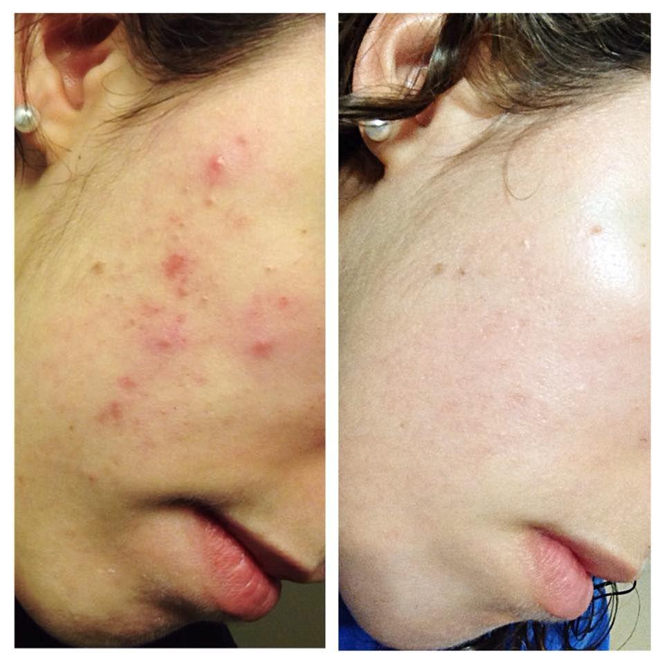 Kem dưỡng da trị mụn Neutrogena Rapid Clear Acne Defense Face Lotion, vừa hỗ trợ trị mụn vừa nuôi dưỡng da từ sâu bên trong