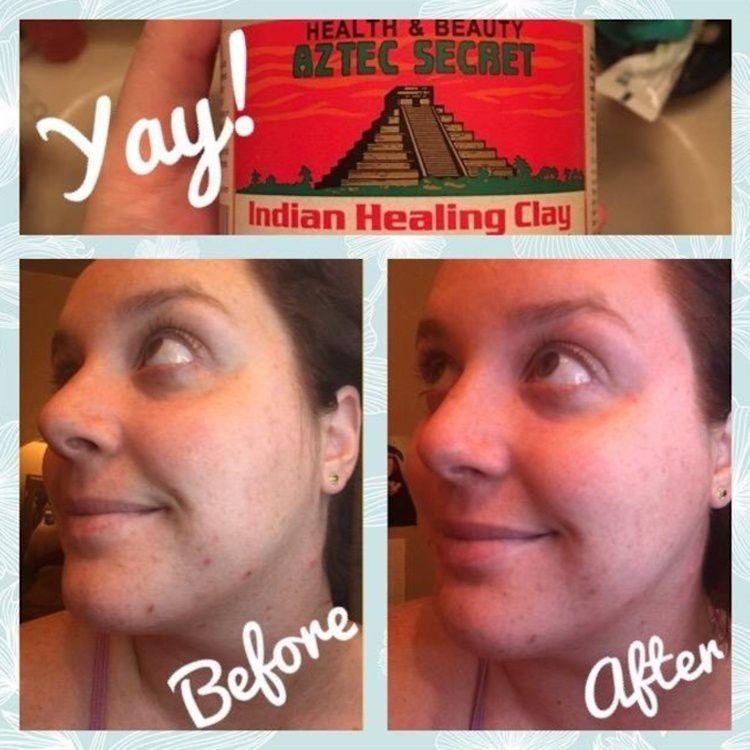 Mặt nạ đất sét trị mụn Aztec Secret Indian Healing Clay 3