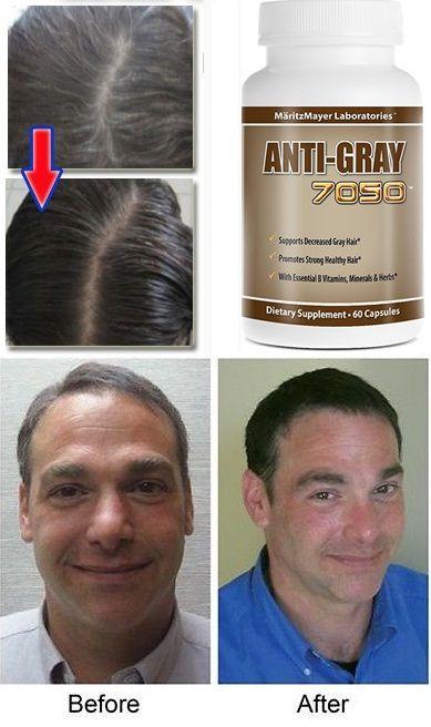 Cách sử dụng Viên hỗ trợ cải thiện tình trạng tóc bạc sớm Anti Gray 7050