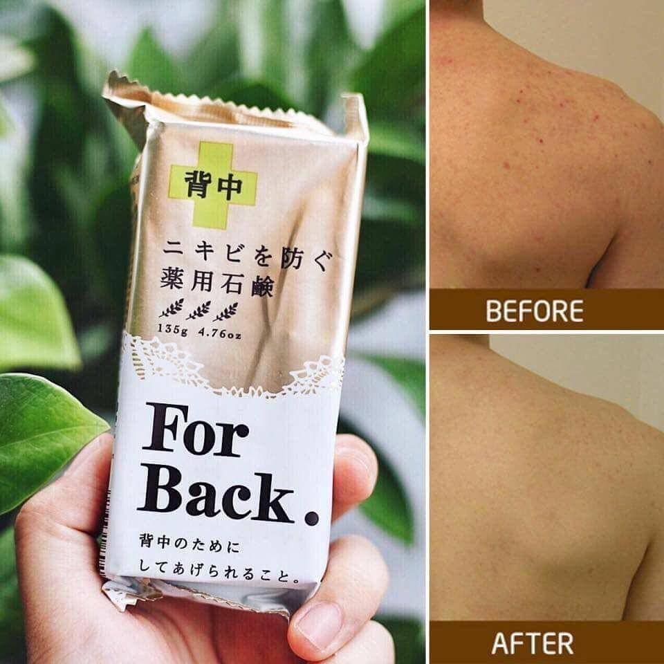 Sử dụng xà phòng trị mụn lưng For Back, tình trạng mụn ở lưng sẽ được cải thiện rõ rệt