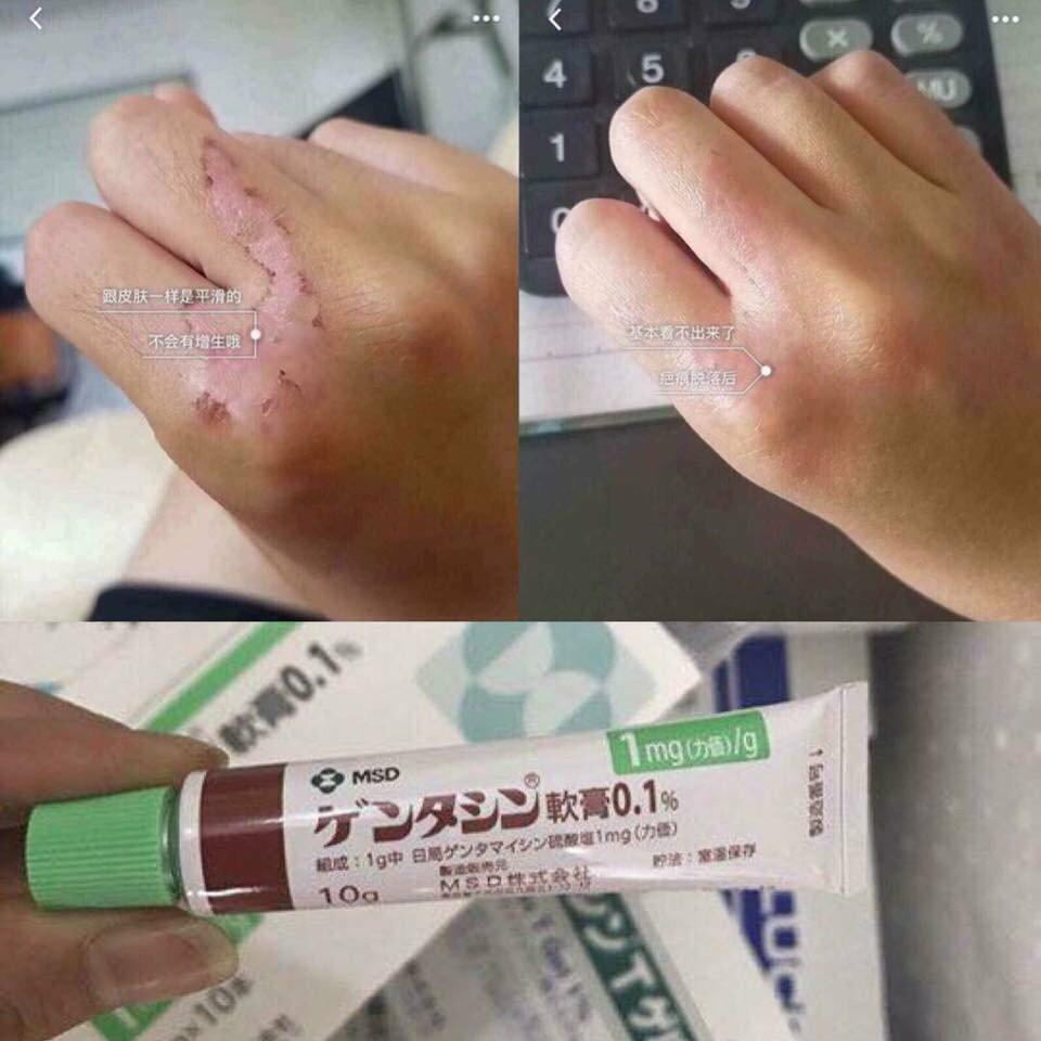 Kem Trị Sẹo Gentacin 10g Của Nhật Bản 3