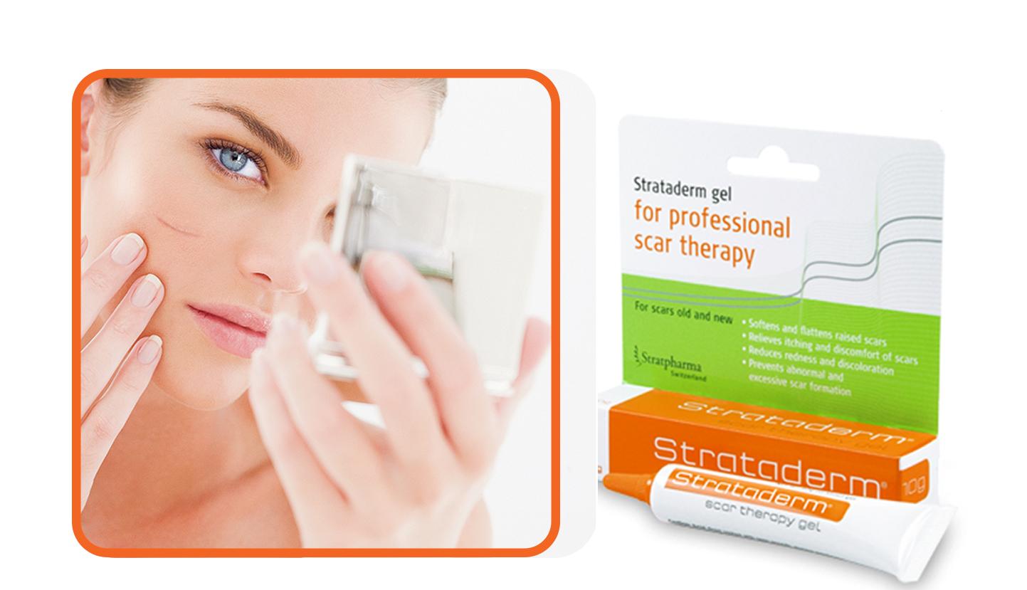 Kem hỗ trợ cải thiện sẹo Strataderm Thụy Sĩ 1