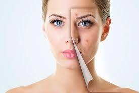 Gel hỗ trợ trị sẹo Dermatix Ultra 7g của Mỹ