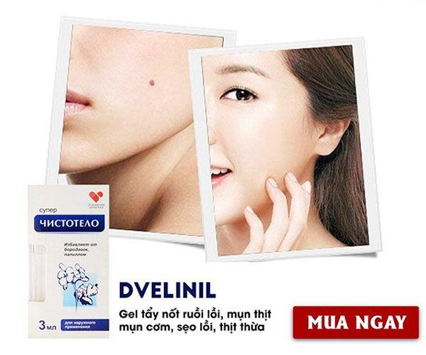 Công dụng Gel Dvelinil chính hãng Nga tẩy nốt ruồi, mụn cóc, mụn thịt, sẹo lồi