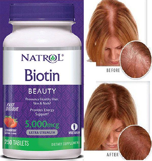 Công dụng Viên ngâm mọc tóc Natrol Biotin 5000mcg