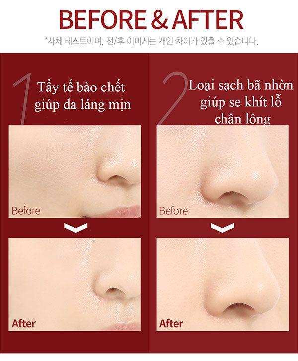 Công dụng Serum Red Peel Tingle Hàn Quốc